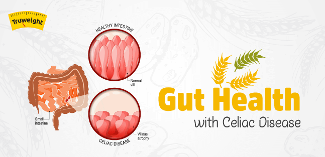 What Is Celiac Disease? How Does It Impact Your Gut Health?